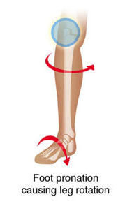 foot pronation causing knee pain