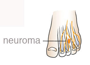 morton's neuroma treatment